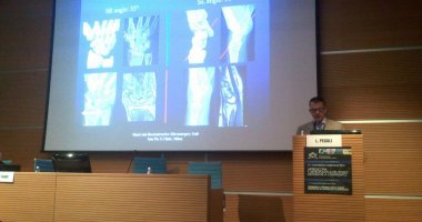 SHORT INTERVIEW AT THE ITALIAN HAND SURGERY NATIONAL MEETING