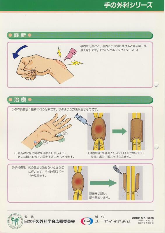 ドケルバン病 (狭窄性 腱鞘炎) Dott. Loris Pegoli