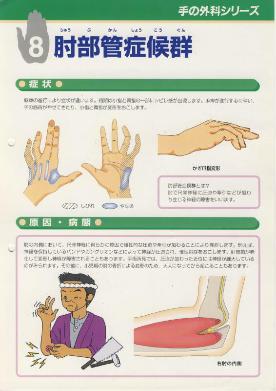>肘部管症候群 Dott. Loris Pegoli