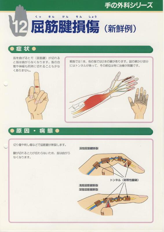 屈筋腱損傷 (新鮮例) Dott. Loris Pegoli