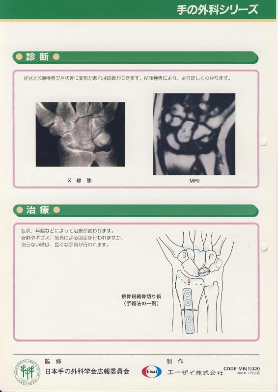 キーンベック病 (月状骨 軟化症) Dott. Loris Pegoli
